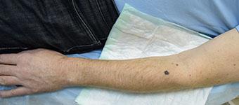 Лечение опухолей кожи
