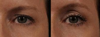 Ультразвуковая подтяжка лица